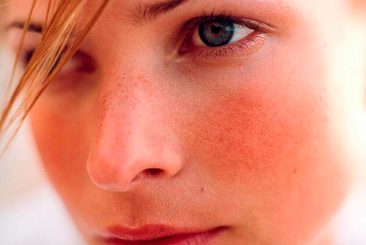 Горят щеки: значение приметы